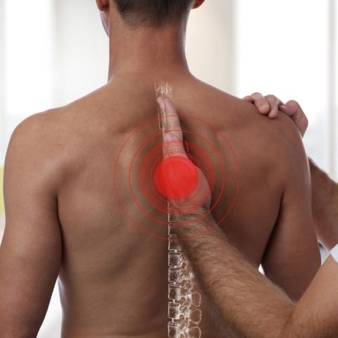 fisioterapia, RPG, postura e dor nas costas e lombar