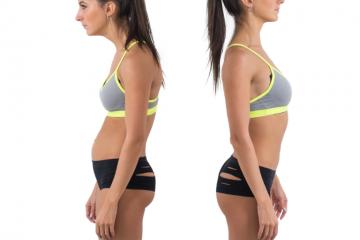 fisioterapia, RPG, postura e dor nas costas e lombar artigo cientifico