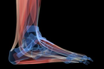 fisioterapia dor cronica praticar atividade fisica fisio suzi evangelista